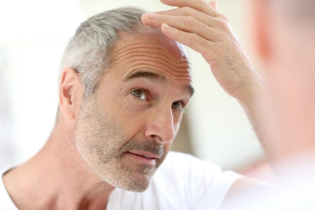 The Most Natural Type of Cosmetic Surgery (Hair Transplant)